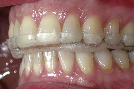 Occlusal Splint Therapy